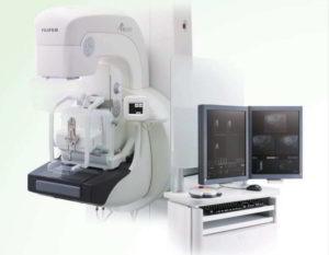 Imagex - Vendita attrezzature per radiologia (Mammografo Digitale)